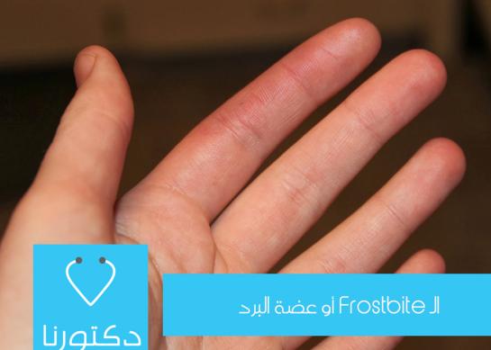 الـ Frostbite