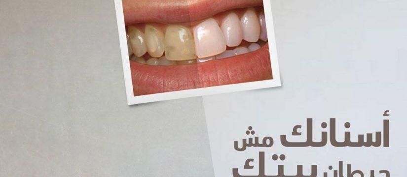 أسنانك مش حيطان بيتك