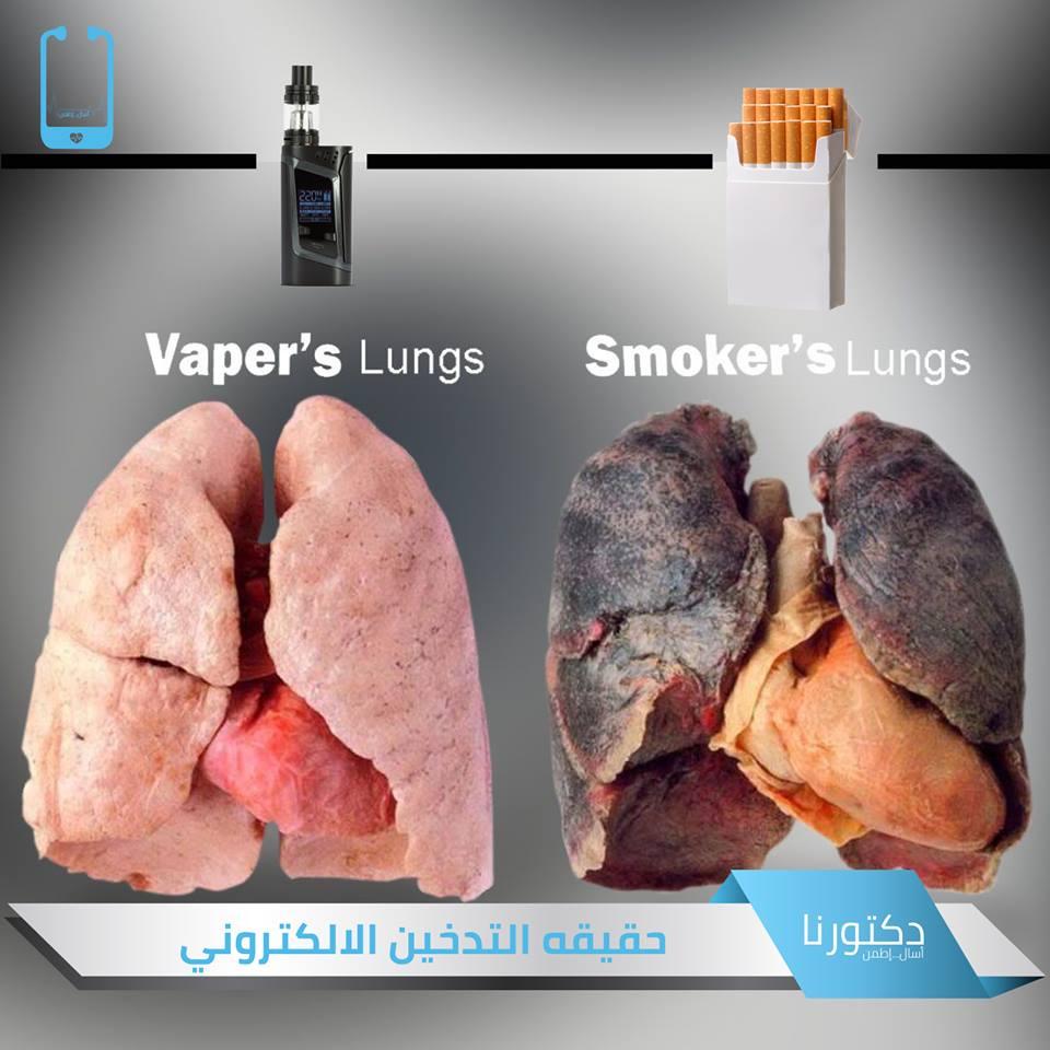نعم، التبخير الإلكتروني هو أكثر أمانا من التدخين