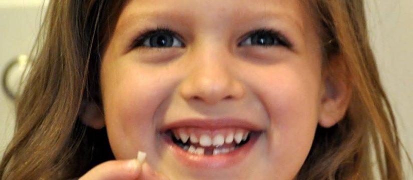 الاسنان اللبنيه